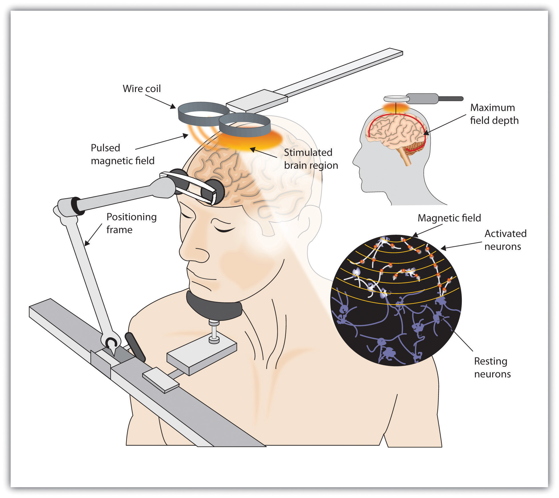 improving human intelligence by non invasive brain Alterego seeks to augment human intelligence and make  in the category of non-invasive brain computer  improving the neural networks that recognize.