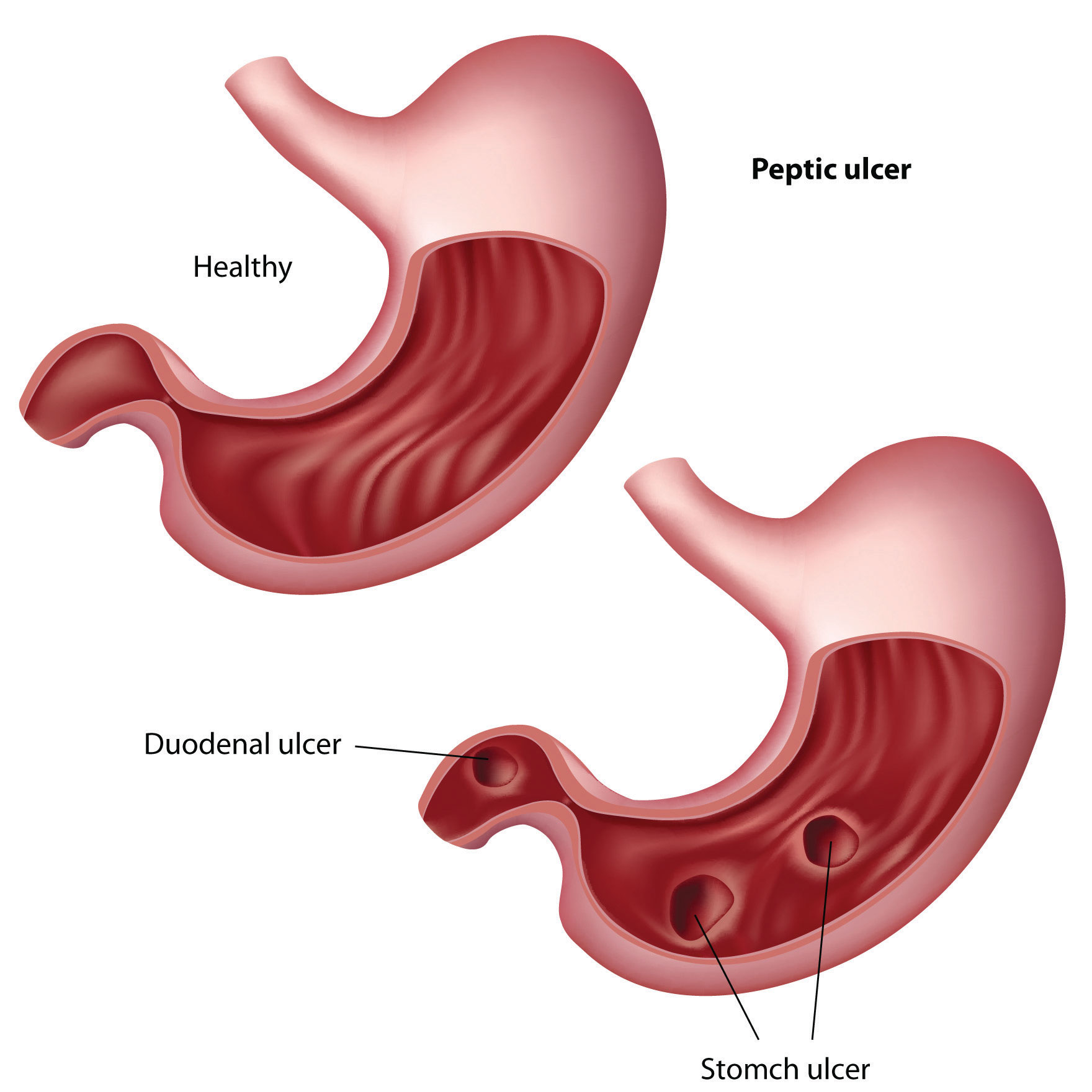 Гастрит язва желудка прополис схема лечение