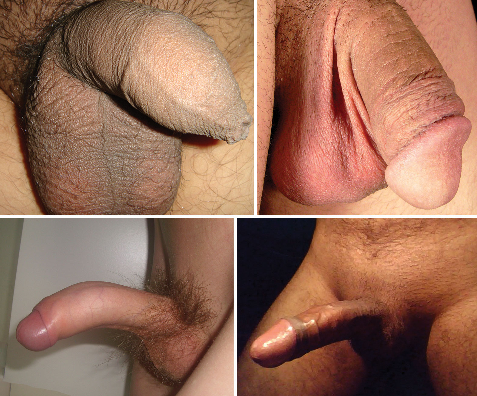 Erect uncircumcised penis, nude vidya balan fuck with boy